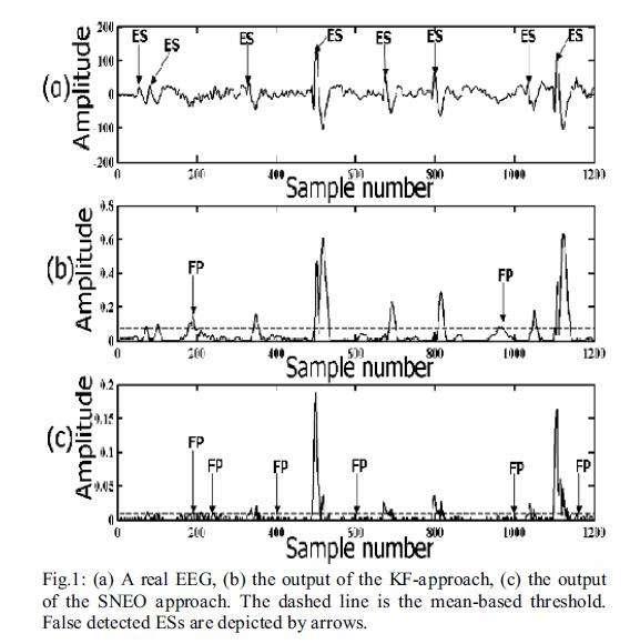 تشخیص اسپایک در نوار مغزی با استفاده از فیلتر کالمن